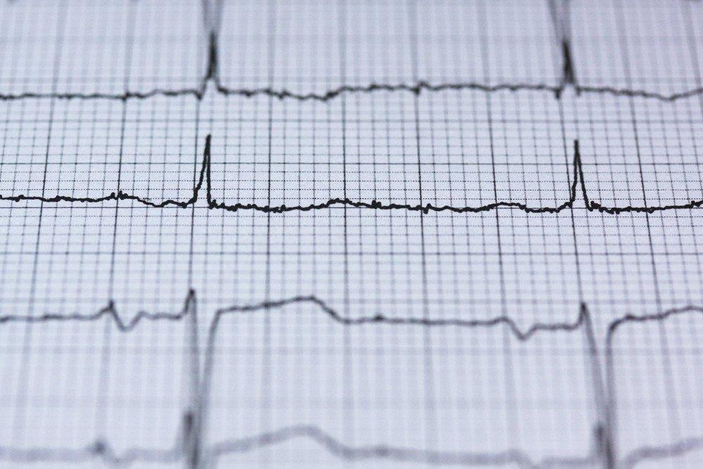 ritmo-cardiaco