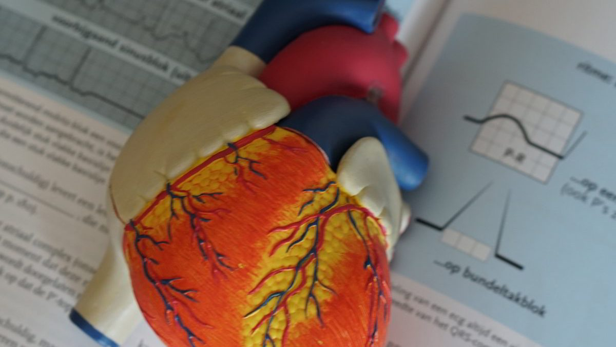 fibrilacion-auricular-ablacion-crioablacion